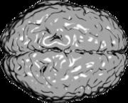 Εγκεφαλλικά ημισφαίρια (από GATZMAN, 07/11/09)