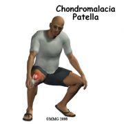 http://www.eorthopod.com/public/patient_education/9738/chondromalacia_patella.html (από nick, 02/12/09)